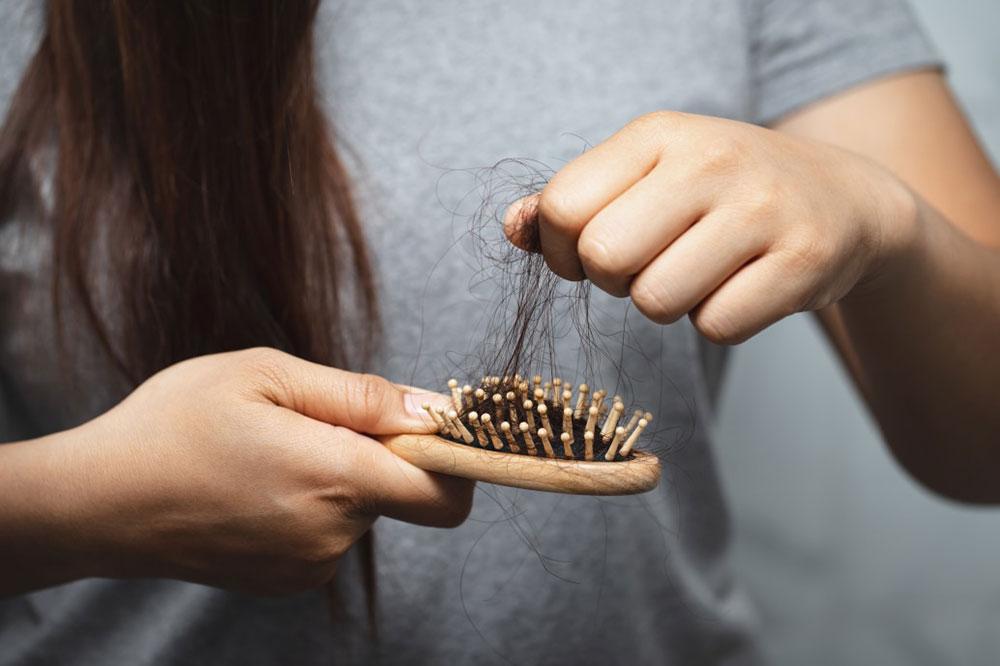 Las caídas de pelo y los tratamientos para tratarla 6